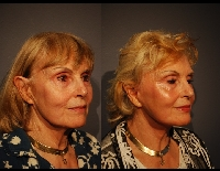 faceliftpatient3d