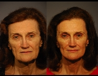 faceliftpatient7a